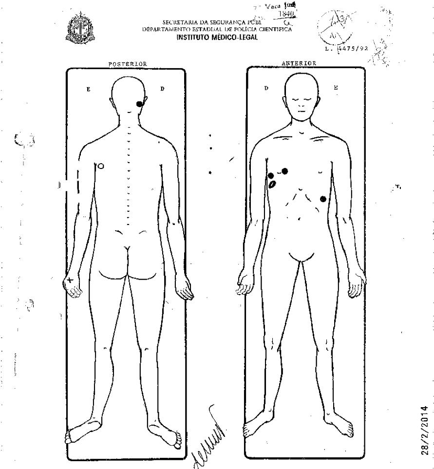 Laudo aponta locais onde Antonio Quirino da Silva foi atingido durante a ação da PM no Carandiru em 2 de outubro de 1992